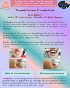 Composite laminates for a perfect smile - UGD Repository